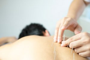 How Does Acupuncture Treat PE